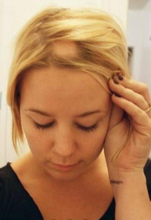 Что принимать против выпадении волос у женщин